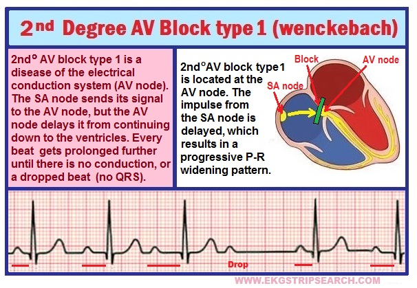 Heart Block Diagram Heart Get Free Image About Wiring