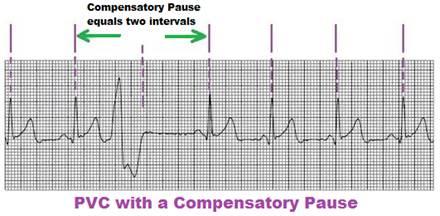 PVC (Premature Ventricular Contractions)