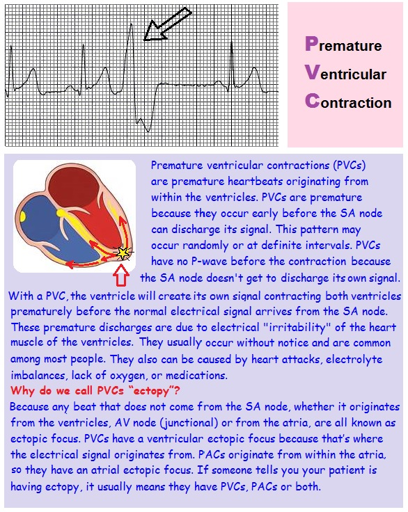 Ekg Strip Search Premature Ventricular Contraction Pvc