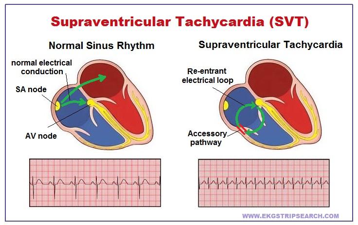 What Is Svt >> Ekg Strip Search Supraventricular Tachycardia Svt